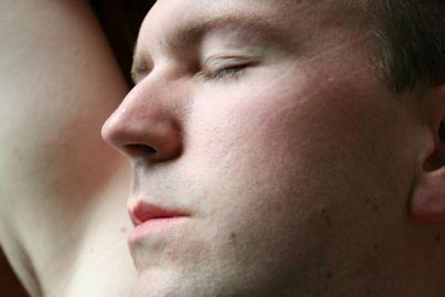 Sleep Lines Brightnewme Is A Clinic Based In Altrincham