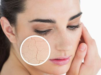 Dry skin face 350