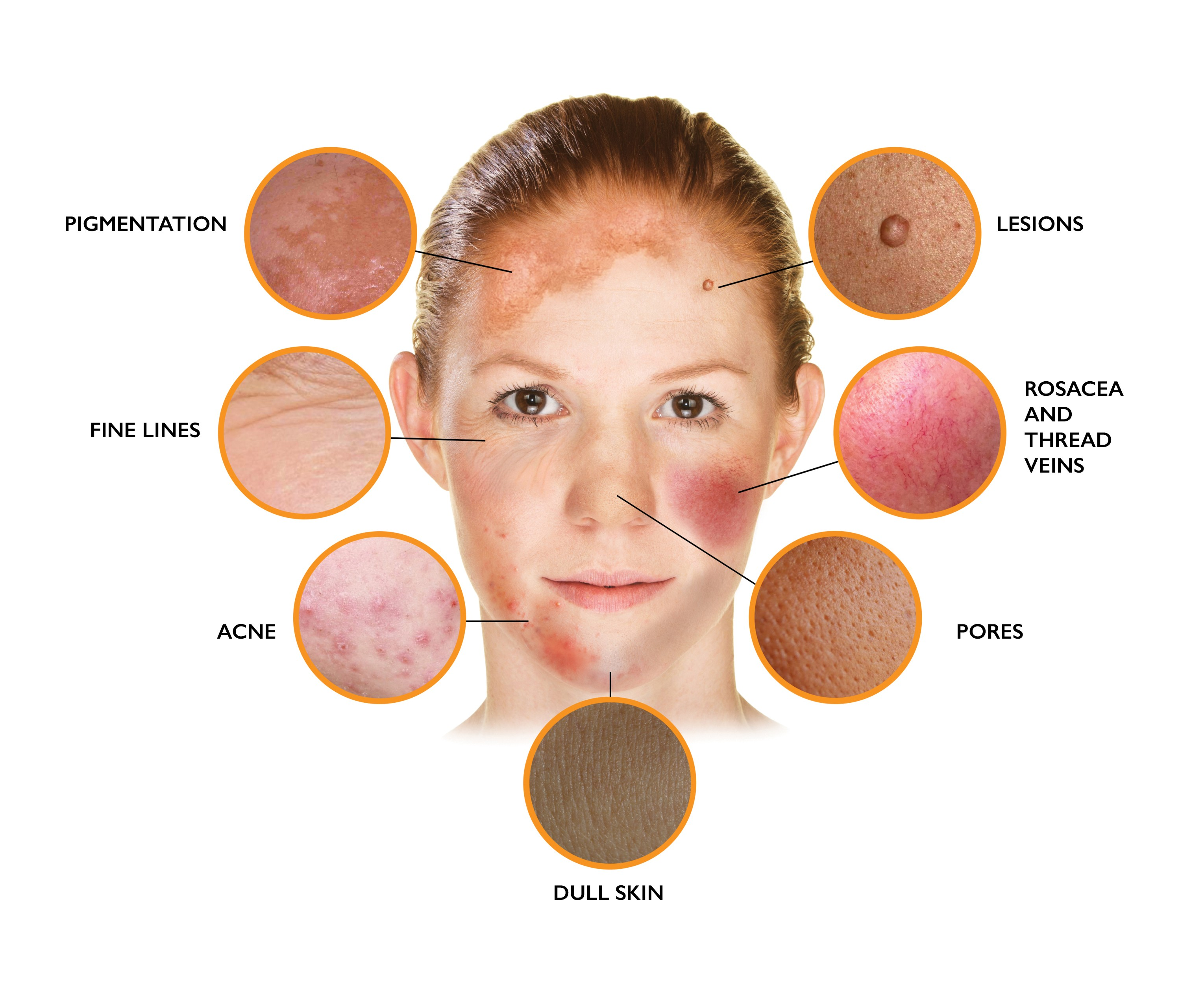 Problem skin image